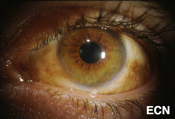 Melanoma In Situ and Invasive Conjunctival Melanoma » New