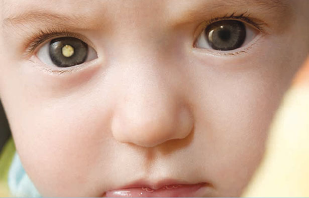 Drug Shows Promise in Eliminating Side-Effect of Retinoblastoma Chemotherapy