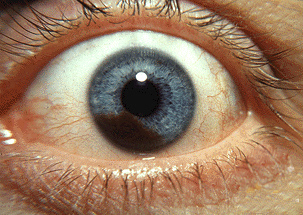 New Research Points to Role of Immune System in Fighting Uveal Melanoma