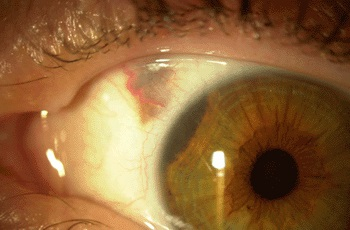Newly Developed Test Shows Promise for Assessing Metastasis Risk in Uveal Melanoma Patients